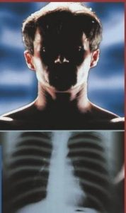 УЗИ щитовидной железы