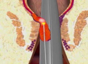 лазерное лечение свища прямой кишки